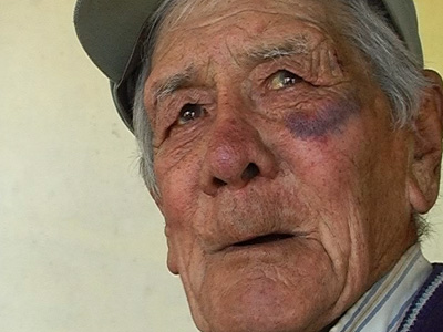 Resultado de imagen para anciano golpeado