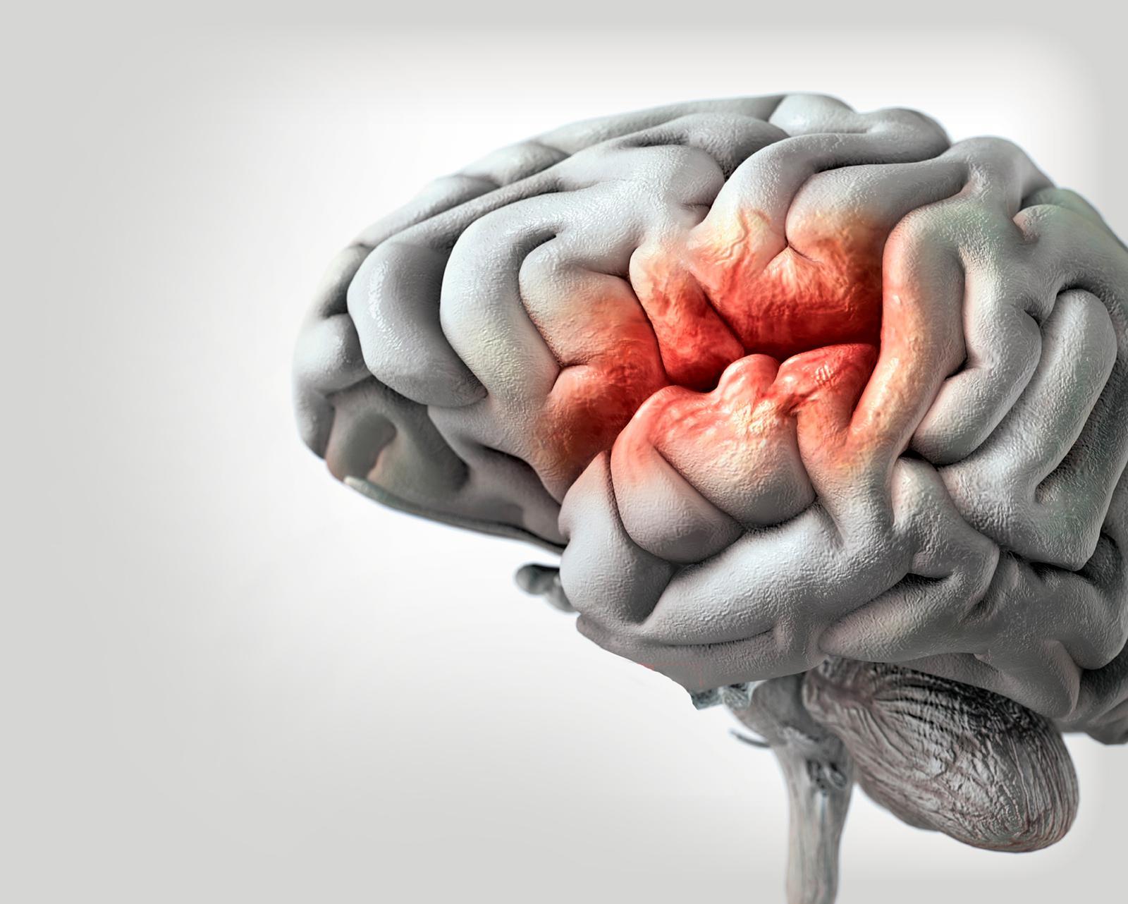 Resultado de imagen para accidente cerebrovascular